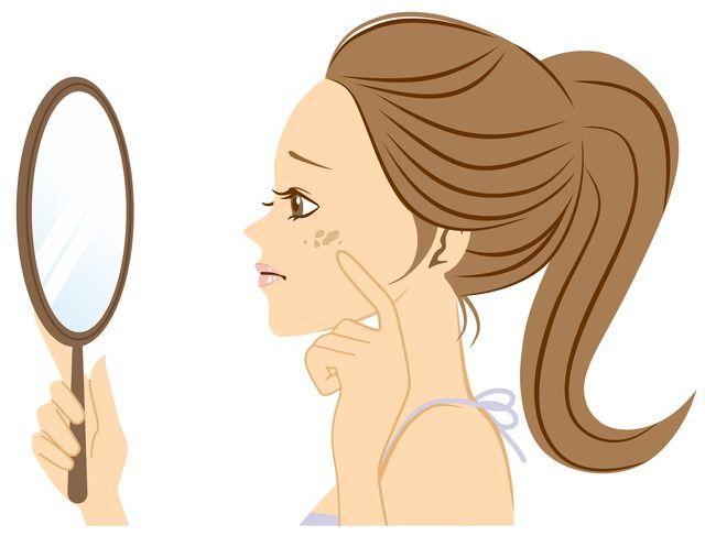 顔のシミ・ニキビ跡に悩む女性
