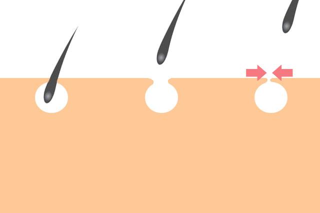エステ脱毛の光脱毛は毛穴を引き締めます
