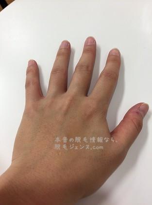 キレイモで施術後の手の甲