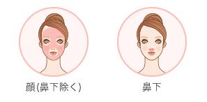 顔脱毛コースの脱毛可能部位
