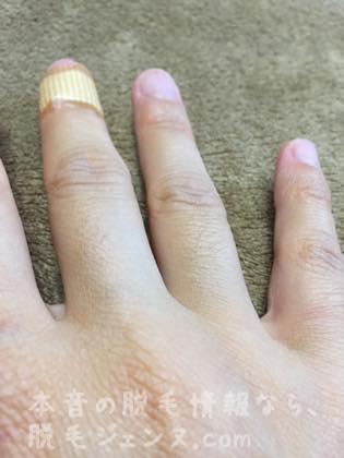 毛深い右指