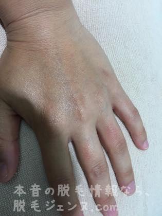 施術後の手