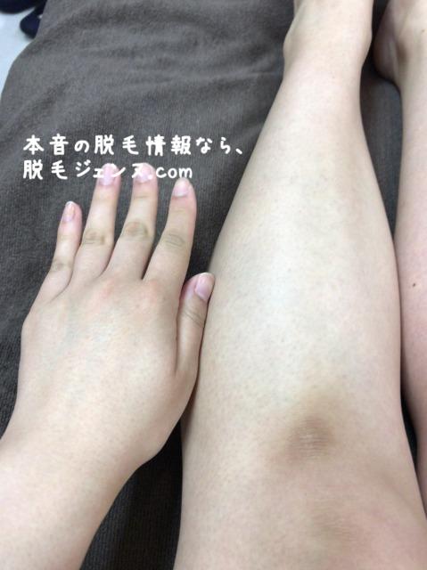 椿クリニックレーザー照射直後の左手足