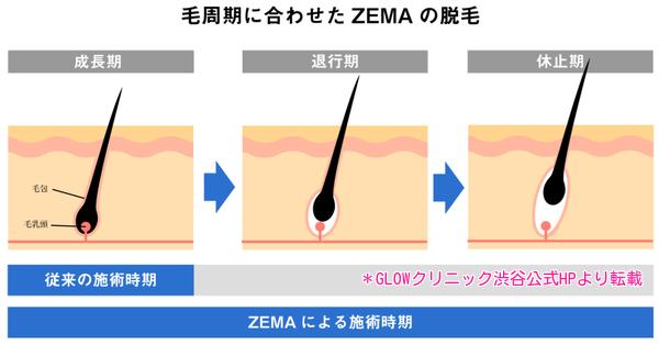 毛周期と脱毛の仕組み、GLOWクリニック渋谷2