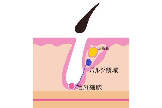 KM新宿クリニックはバルジを破壊する脱毛