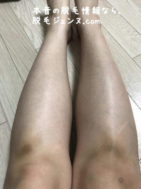 椿クリニック脱毛前のひざ下の状況