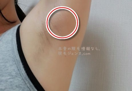 アリシアクリニック 体験 after2 改改